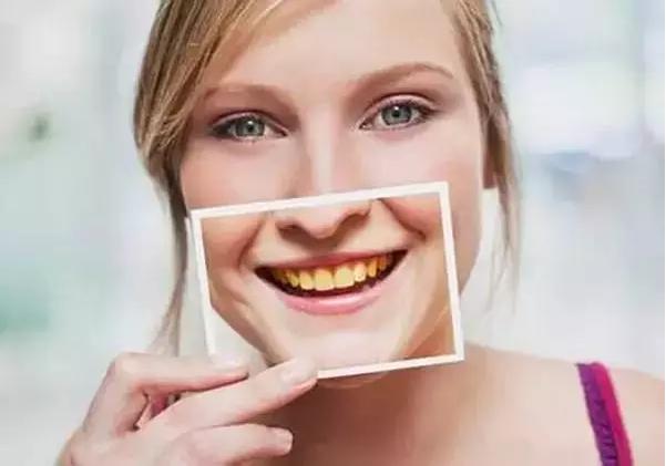 漂亮牙齿图片大全可爱